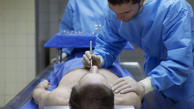 Tanatopraxia noua tehnica de imbalsamare a decedaților